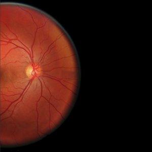 Retinal Shift